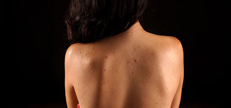 Lumps, Bumps, and Other Skin Conditions